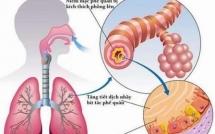Tổng quan bệnh viêm phế quản ở trẻ em