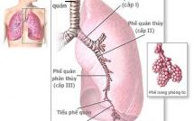 Tại sao viêm phế quản phổi ở trẻ em lại nguy hiểm?